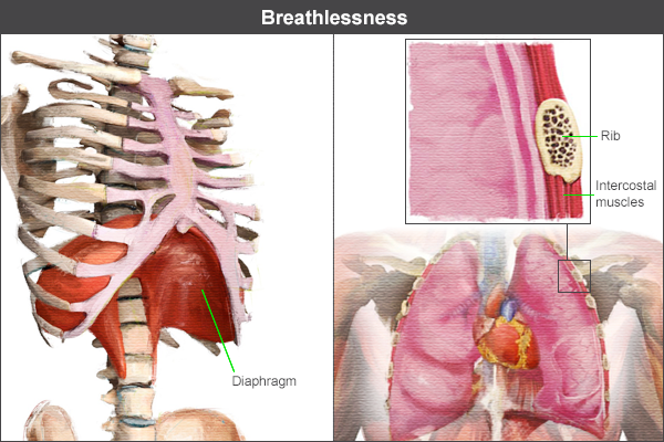 Breathlessness showing diaphragm and intercostal muscles
