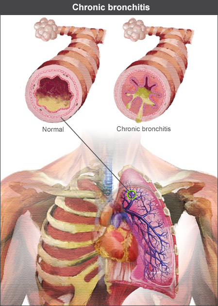 Lungs showing bronchitis mucus