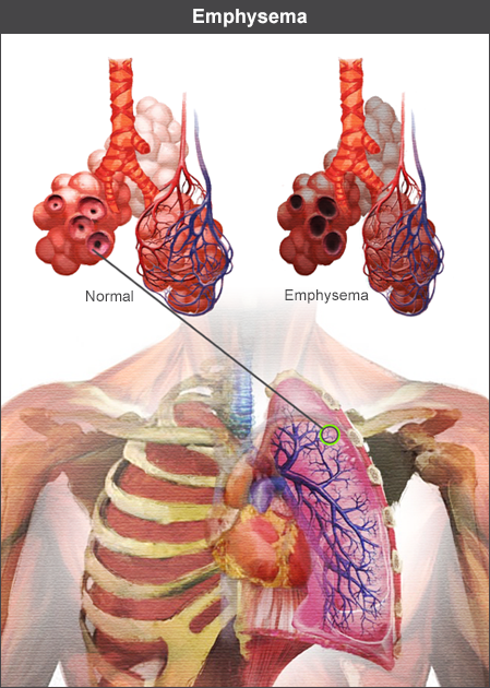 Alveoli show effects of emphysema
